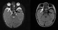 Optic nerve hypoplasia, chiasmal aplasia.png