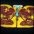 Pelvic MRI T1FSE T2frFSE T2FSfrFSE 26.jpg