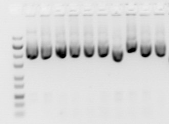 Gel electrophoresis of nucleic acids - Gels of plasmid preparations usually show a major band of supercoiled DNA with other fainter bands in the same lane.  Note that by convention DNA gel is displayed with smaller DNA fragments near the bottom of the gel.  This is because historically DNA gel were run vertically and the smaller DNA fragments move downwards faster.