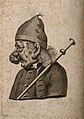 Profile of a man with extensive growths on his nose. Line en Wellcome V0010543.jpg