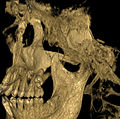 Severely impacted wisdom tooth CT scan - upper right.jpg