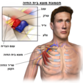 Thoracic Outlet Syndrome Hebrew.png