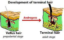 Eruptive vellus hair cyst - Wikipedia