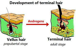 Terminal hair Thick, long, and dark hair, as compared with vellus hair