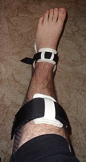 Splint (medicine) medical restraint to keep body part in place