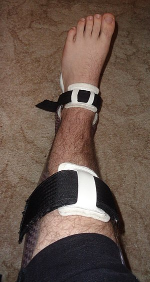 Splint (medicine) - An Ankle Foot Orthosis (AFO) is a type of splint used to support the foot and ankle.