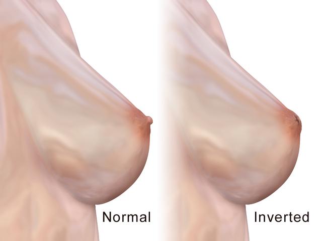 Thumb Size Nipples 11
