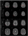 Cerebral Folate Deficiency - Brain MRI performed at 4 and 12 years old.png