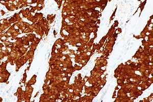 Head and neck squamous-cell carcinoma - Squamous cell carcinoma of the head and neck with p16 staining in keeping with HPV-associated squamous cell carcinoma. p16 immunostain.