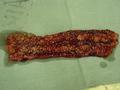 Crohn Jejunum.PNG