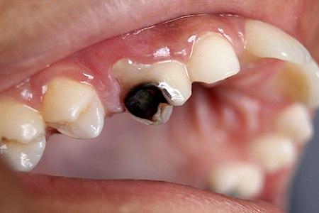 Kerosakan gigi