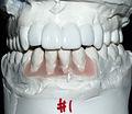 Dental setup for implants.jpg