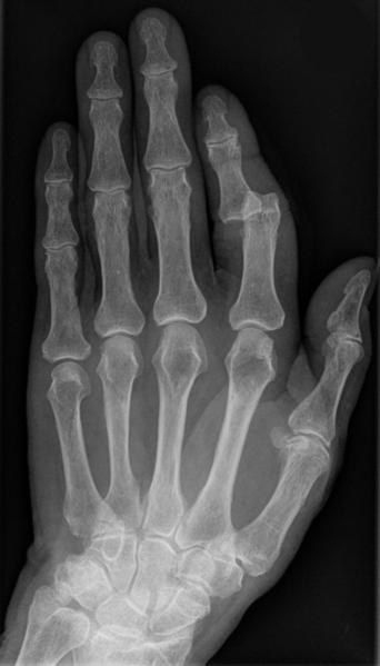 File:Finger luxation003.png