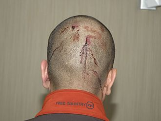 Shooting of Trayvon Martin - The back of Zimmerman's head at the police station