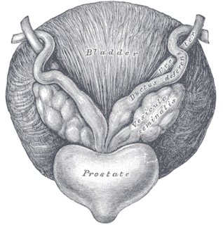 Prostatectomy
