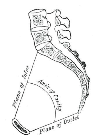 Suspensory ligament of ovary - pelvic inlet