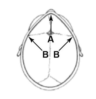 Craniofacial surgery - Fig. 3 Locations of the incisions used in fronto-supraorbital advancement.