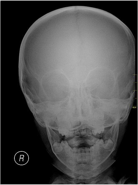 File:Medical X-Ray imaging EDE04 nevit.jpg