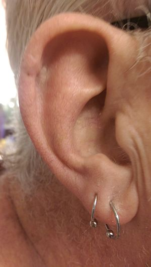 Mohs surgery - The ear of a 63-year-old man, photographed sixteen days after Mohs surgery to remove a squamous cell carcinoma on the left upper edge of the ear, and three days after removal of the sutures.