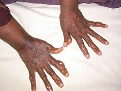 små knölar på fingrarna