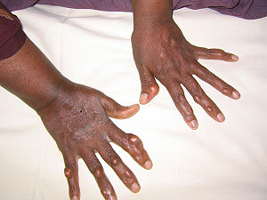 Multiple hand xanthomas 18 yo case report.jpg