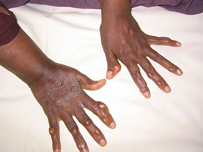 enfermedades de exceso de acido urico sintomas de acido urico en rodillas