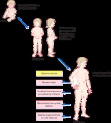 Eczema su mani metodi nazionali