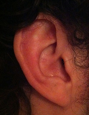 Ear. Good for hearing.