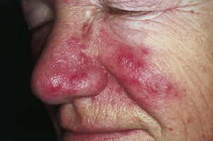 English: Rosacea. Erythema and telangiectasia ...