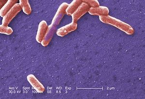Escherichia coli - Scanning electron micrograph of an E. coli colony.