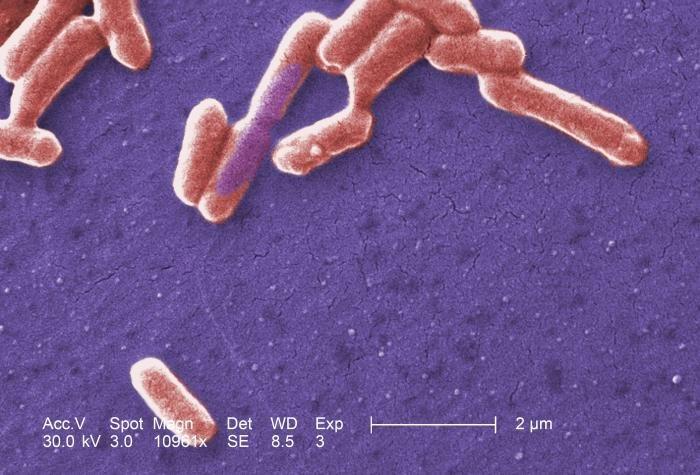 Scanning electron micrograph of an E. coli colony