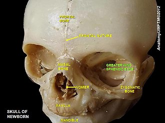 Greater wing of sphenoid bone - Image: Slide 7nnnn