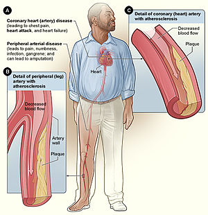 Health effects of tobacco - Smoking can cause atherosclerosis leading to coronary artery disease and peripheral arterial disease