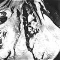 Twentymile Glacier, August 22, 1979 (GLACIERS 5077).jpg