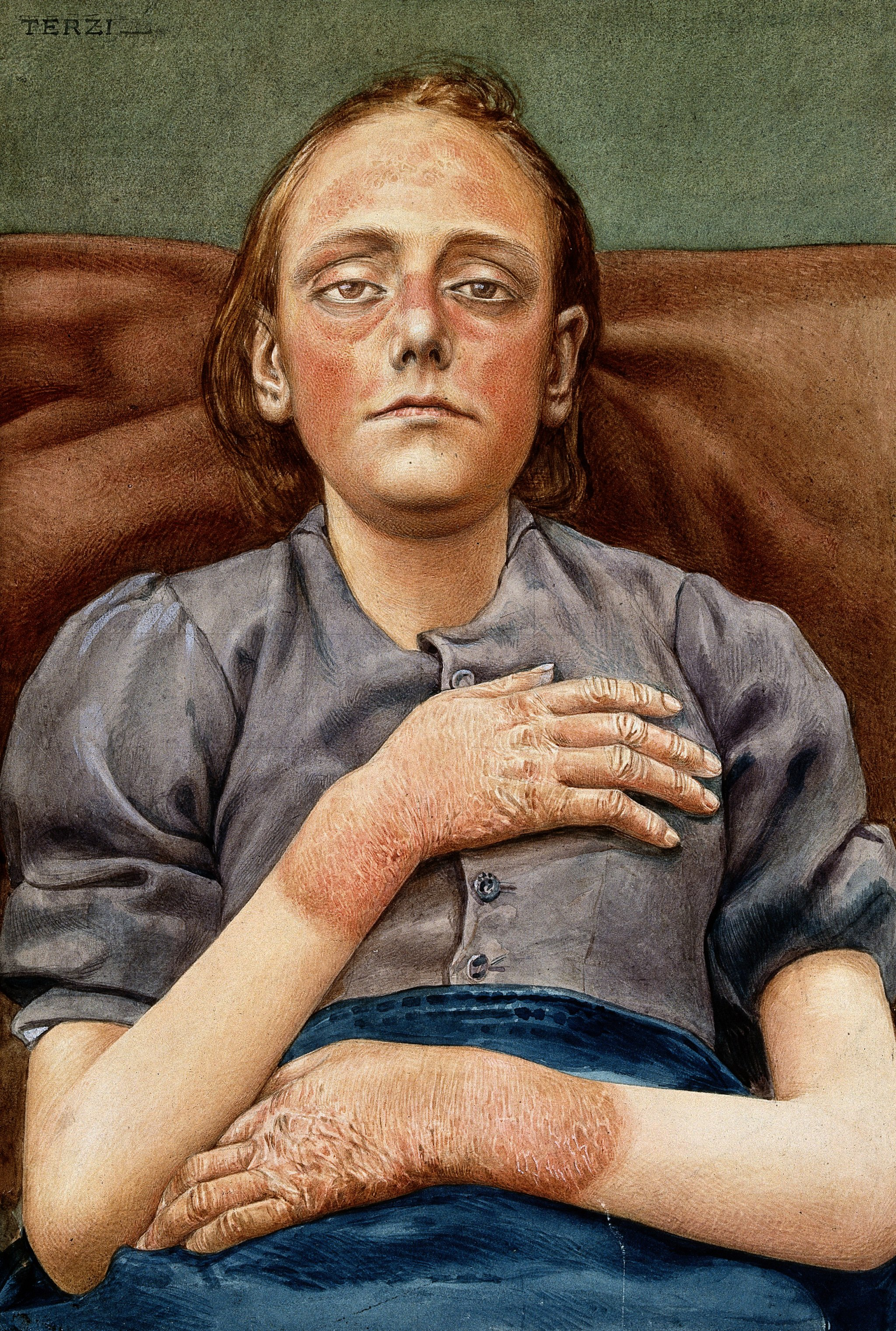 A woman suffering from chronic pellagra with dermatitis on h Wellcome V0022632
