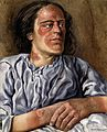 A woman suffering from chronic pellagra with dermatitis on h Wellcome V0022634.jpg