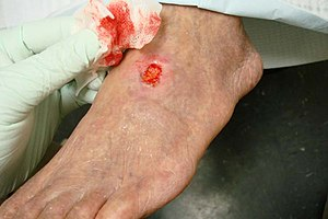 Arterial insufficiency ulcer - A 71-year-old diabetic male smoker with severe peripheral arterial disease presented with a dorsal foot ulceration (2.5 cm X 2.4cm) that had been chronically open for nearly 2 years.