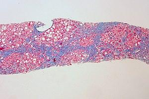 Cirrhosis of Alcoholic Liver Disease (5517625779).jpg