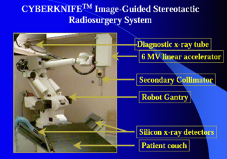 Cyberknife - The main features of the CyberKnife system, shown on a Fanuc robot
