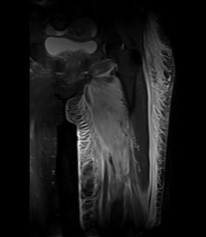 Diabetic myonecrosis - Coronal fat suppressed STIR image demonstrating enlargement and increased signal in the left adductor muscle group with associated subcutaneous edema in a patient with diabetic myonecrosis.