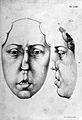 Dieffenbach, Chirurgische Erfahrungen Wellcome L0028280.jpg