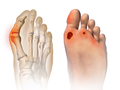 Foot Problems Bunion & Ulcer.png