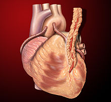 coronary artery bypass surgery wikipedia