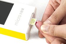 Patient Testing With Microinr From Iline Microsystems