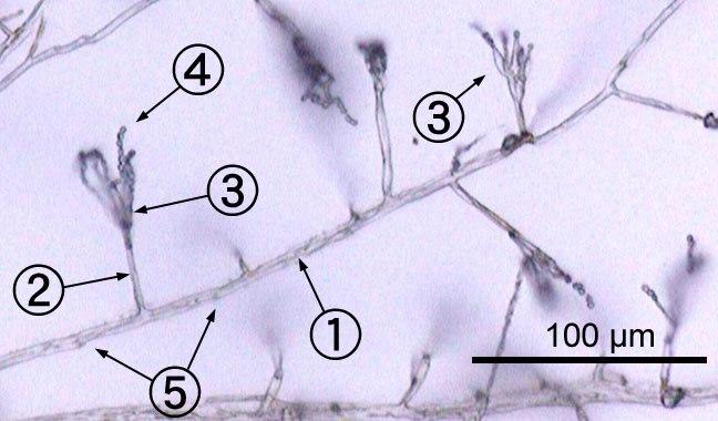 Penicillium labeled cropped