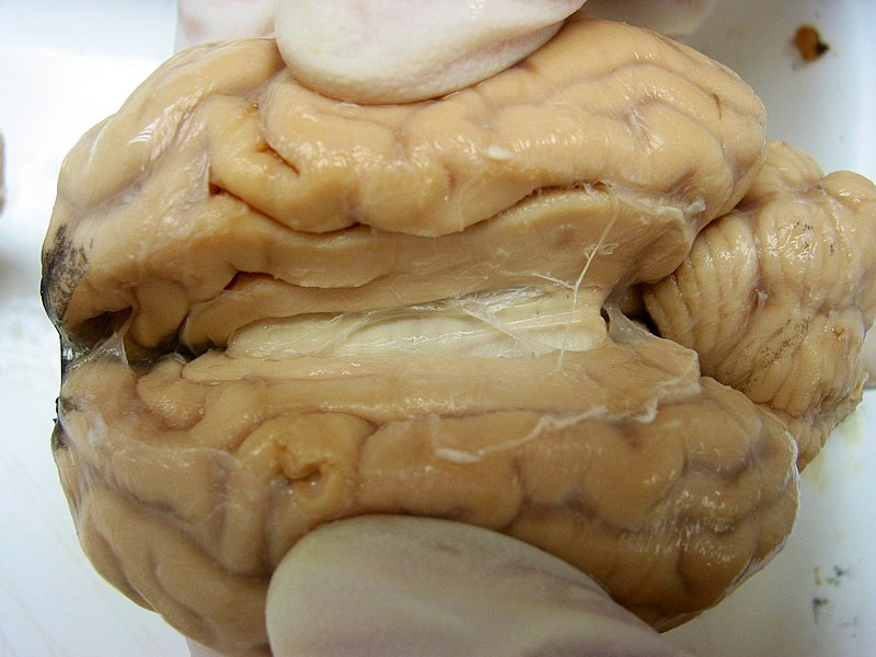800px-Sheep_Brain_Dissection_edited.jpg