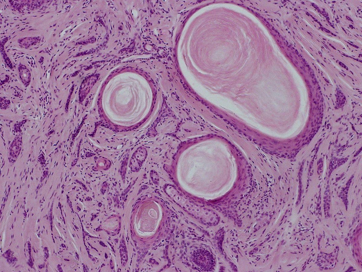 Desmoplastic trichoepithelioma - Wikipedia  Desmoplastic tr...