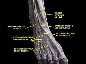 Extensor digitorum longus muscle - Image: Slide 2ABBAA