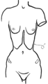 Toleration of the corset1028fig6 .png