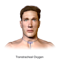 Transtracheal Oxygen (Adult).png